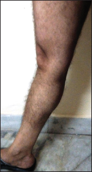 Figure 4: Passive knee hyperextension over 10 degrees